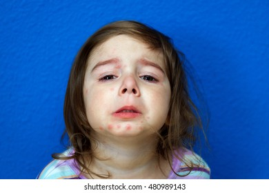A little girl with the Chicken Pox holds her chin up to show her marks.  She has been crying.