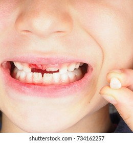 Little girl with fresh wound after pulling out milk tooth