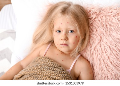 Little girl ill with chickenpox lying in bed