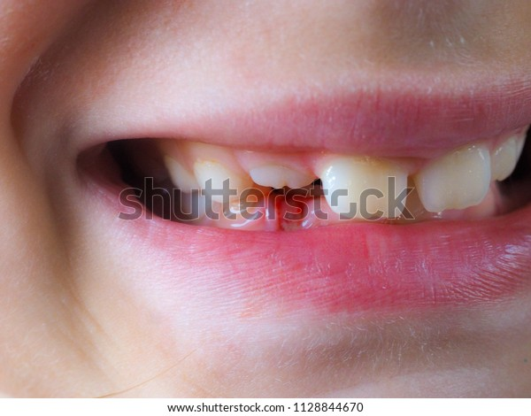 Little girl missing a milky tooth, between fingers with a grin, teeth smile