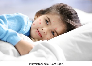 Little girl with red pimples lying in bed at home. Chicken pox concept