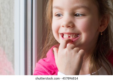 Little girl showing a lost tooth