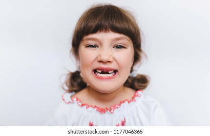 A little girl shows her milk teeth. Temporary baby teeth fall out. Toothless first grader.