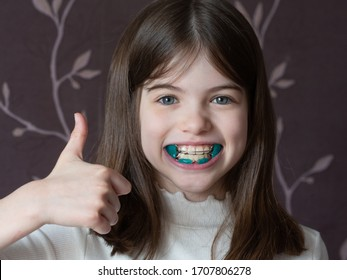 Little girl shows orthodontic apparatus in the mouth, malocclusion, pediatric orthodontics, close-up