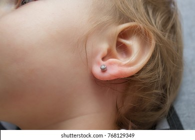 a little girl is treated with a wound on the earlobe after earring piercing