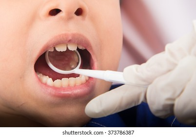 Little sibling boy pretend as a dentist close up inside mouth check up