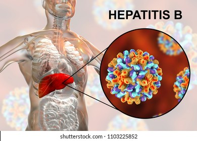 Liver with Hepatitis B infection highlighted inside human body and close-up view of Hepatitis B Viruses, medical concept, 3D illustration