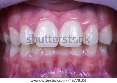 Local Tooth Enamel Hypoplasia Stock Photo Edit Now 746778106