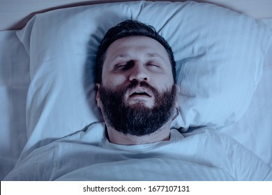 A lonely bearded man sleeps at night with his mouth open, snoring. Apnea syndrome, bedroom, pajamas, white bedding. Close up