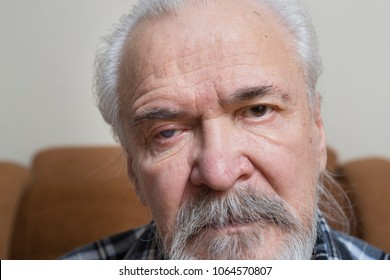 A lonely sick poor old man suffering from eye diseases, independently engaged in conservative treatment of cataract and glaucoma.