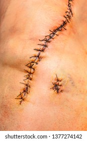 Long surgical suture, skin wound is sewn with thread, a week after knee surgery
