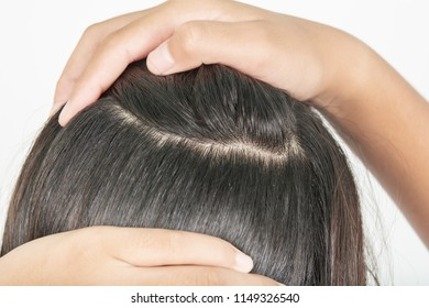 Long and thick hair of women and scalp problem with dandruff