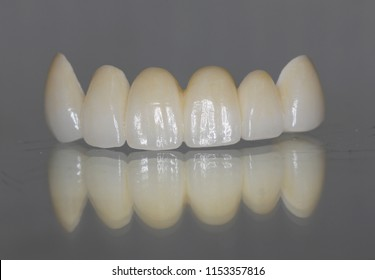 Long zirconia bridge with all porcelain with metal free