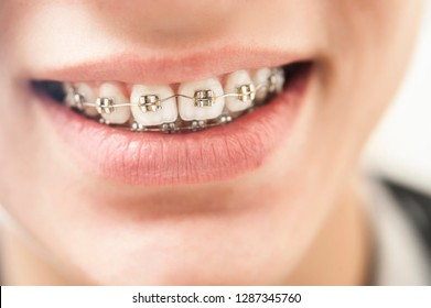 The look is close to the teeth's braces on the white teeth of boy to equalize the teeth. Dental concept