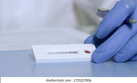 Looking at Covid-19 test kit results where blood was placed into equipment and doctor awaits results.