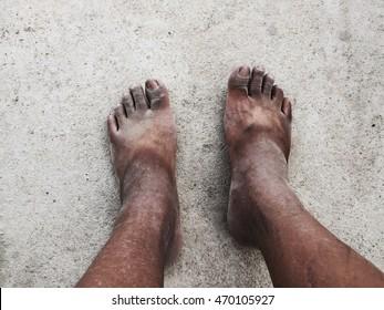 Dirty Feet   The dirty feet of a thru-hiker.   Sam