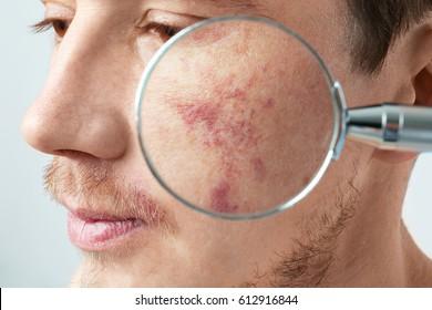 Looking at young man's birthmarks through magnifier, closeup