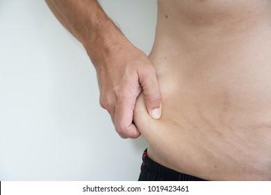 Loose skin problem in men Due to exercise