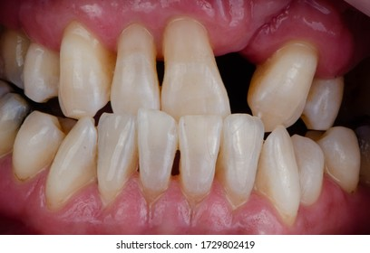 The losing, mal-position, cross-biting of front teeth and cleft palate