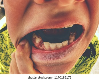 Lost canine tooth boy.  Little boy showing that he lost first milk canine tooth