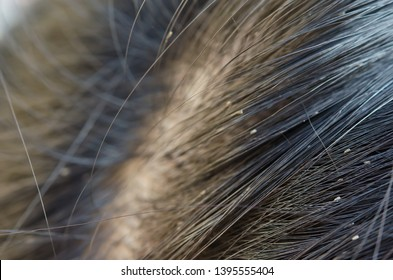 Louse egg on the hair causes itchy head.