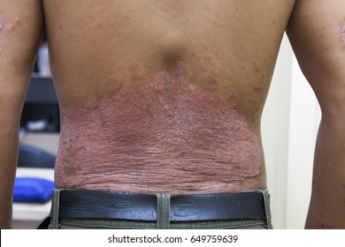 Itchy Back Images, Stock Photos & Vectors | Shutterstock