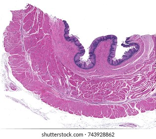 Low magnification micrograph showing the layers of the wall of a human esophagus: mucosa, submucosa, muscular and adventitia.