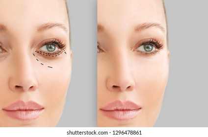 Lower Blepharoplasty.Marking the face.Perforation lines on females face, plastic surgery concept.