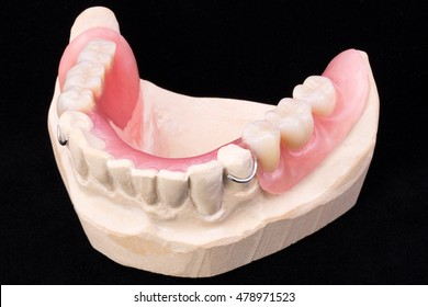 Lower denture on a black background