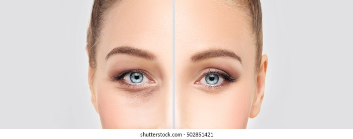Lower Eyelid Blepharoplasty.