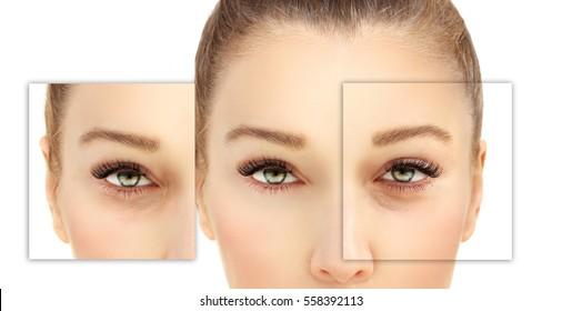 Lower Eyelid Blepharoplasty.