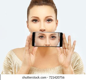 Lower Eyelid Blepharoplasty..Before and after cosmetic procedures,showing photos on your smartphone