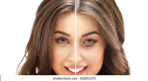 Lower eyelid blepharoplasty.Upper  blepharoplasty
