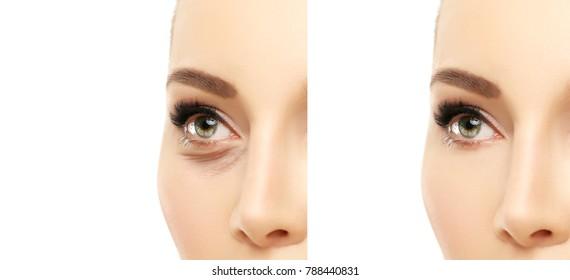 Lower eyelid blepharoplasty.Upper  blepharoplasty.Before and after cosmetic procedures