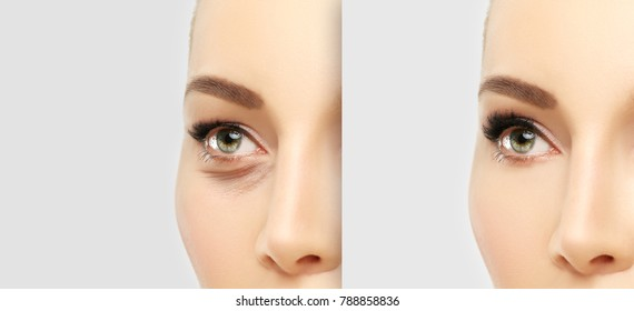 Lower eyelid blepharoplasty.Upper  blepharoplasty.Before and after cosmetic procedures,showing photos
