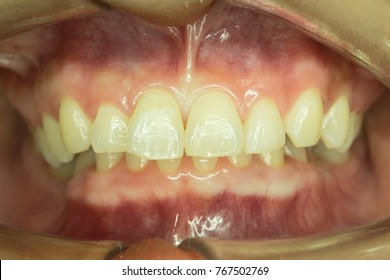 lower front teeth are closed with upper front teeth, deep bite occlusion
