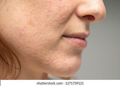 Lower half of woman's face, sideview