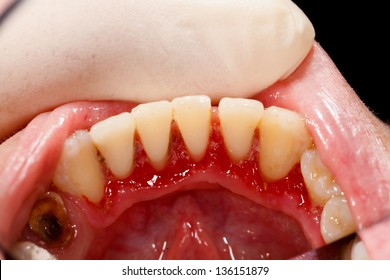 Lower incisors after periodontal treatment - broken tooth with cavity and gum disease.