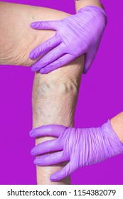 Lower limb vascular examination because suspect of venous insufficiency. The female legs on pink background. varicose veins