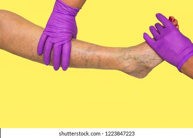 Lower limb vascular examination because suspect of venous insufficiency. The female legs on yellow background
