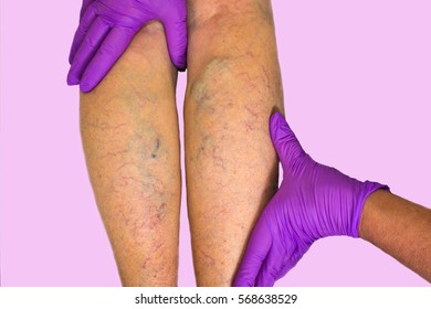 Lower limb vascular examination because suspect of venous insufficiency. The female legs on pink background
