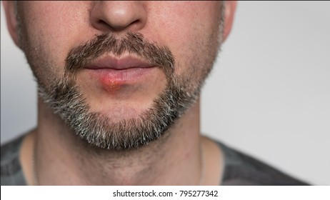 Lower part of beard man's face with herpes on his lips. Horizontal shot with sides 16 x 9. Face is on the left side and right is for copy space. White background.