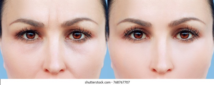 Lower and upper Blepharoplasty..Before and after cosmetic procedures