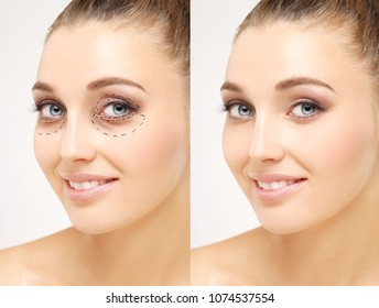 Lower and upper  Blepharoplasty.Marking the face.Perforation lines on females face, plastic surgery concept.