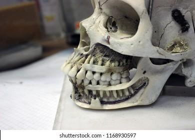 Upper Jaw Bone Images, Stock Photos & Vectors   Shutterstock