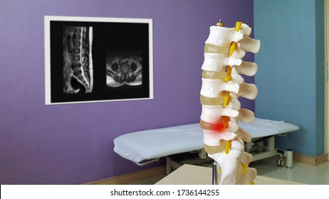 Lumbar spine model show spinal canal stenosis and nerve compression from disc displacement or Herniated disc disease(HNP) with MRI. Medical neurology diagnosis care and treatment technology concept.