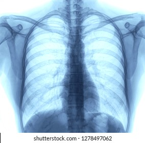 Lung Chest x-ray images of patient by mri scanner for medical diagnose. - Image