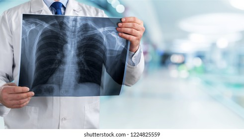lung radiography concept. radiology doctor examining at chest x ray film of patient at hospital room.