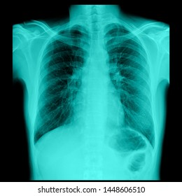 Lung X-ray film of male patients