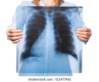 Lunges x-ray over woman chest